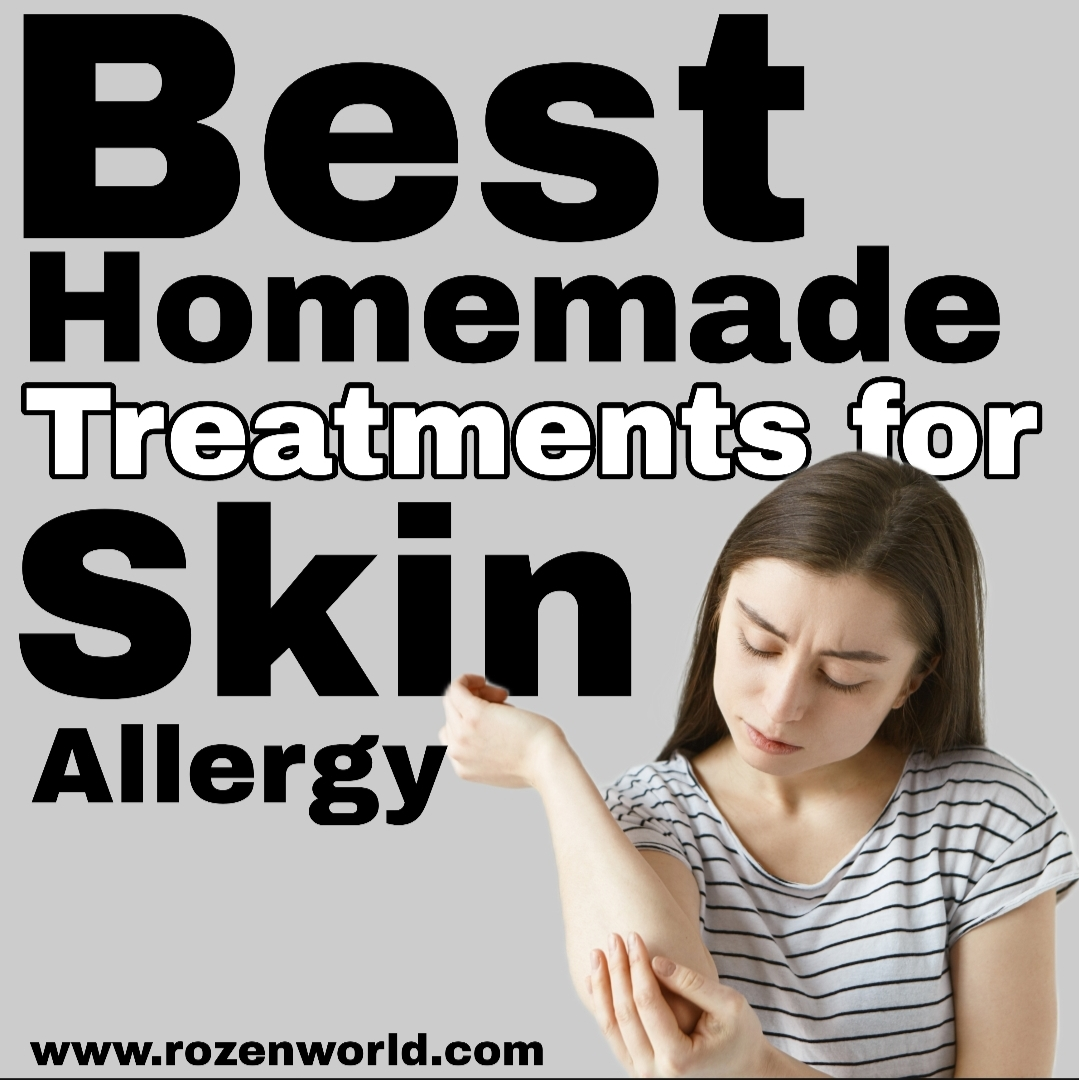Best Homemade Treatments Used for All Skin Allergy